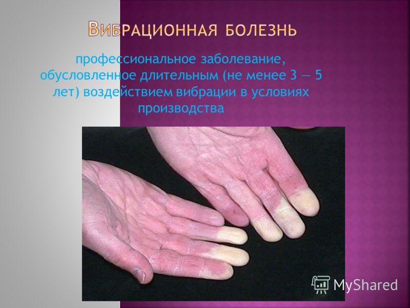 профессиональное заболевание, обусловленное длительным (не менее 3 5 лет) воздействием вибрации в условиях производства