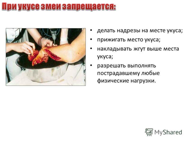 делать надрезы на месте укуса; прижигать место укуса; накладывать жгут выше места укуса; разрешать выполнять пострадавшему любые физические нагрузки.