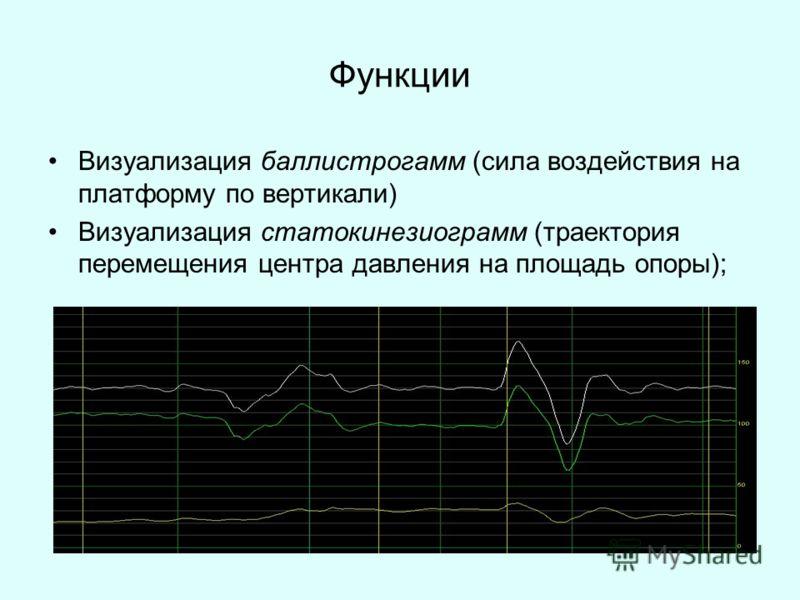 Функции Визуализация баллистрогамм (сила воздействия на платформу по вертикали) Визуализация статокинезиограмм (траектория перемещения центра давления на площадь опоры);