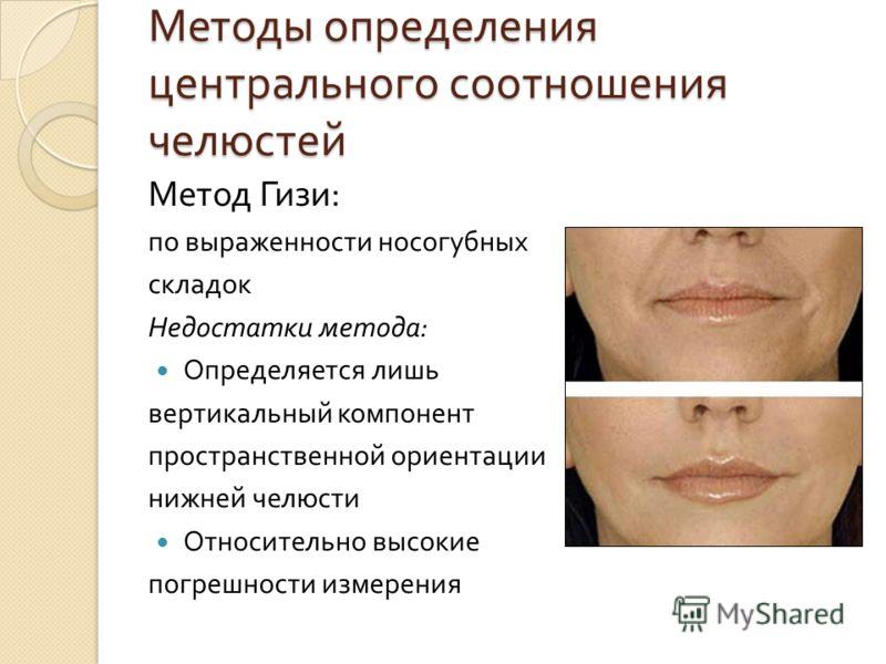 Методы определения центрального соотношения челюстей Метод Гизи : по выраженности носогубных складок Недостатки метода : Определяется лишь вертикальный компонент пространственной ориентации нижней челюсти Относительно высокие погрешности измерения
