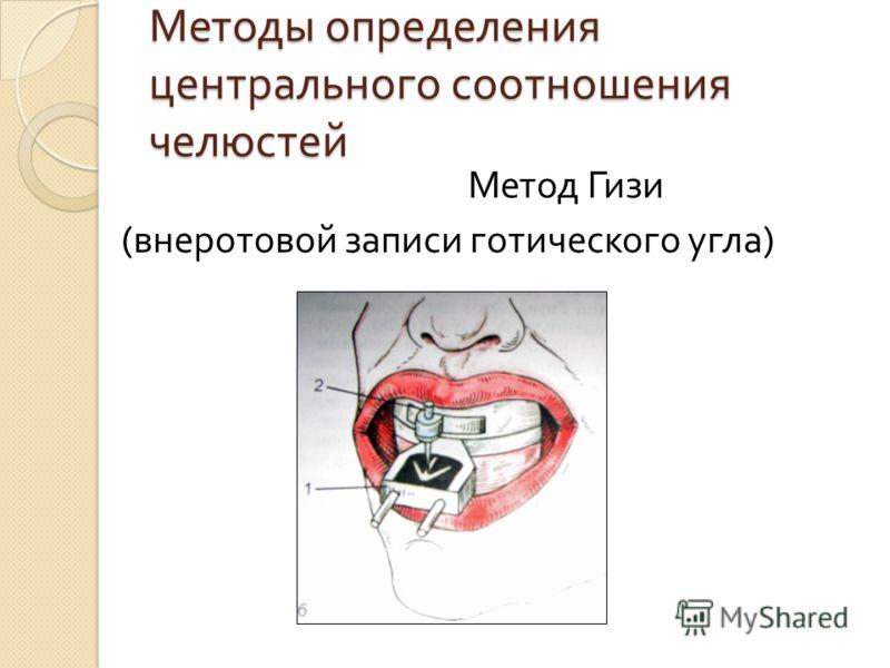 Методы определения центрального соотношения челюстей Метод Гизи ( внеротовой записи готического угла )