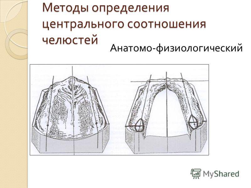 Методы определения центрального соотношения челюстей Анатомо - физиологический