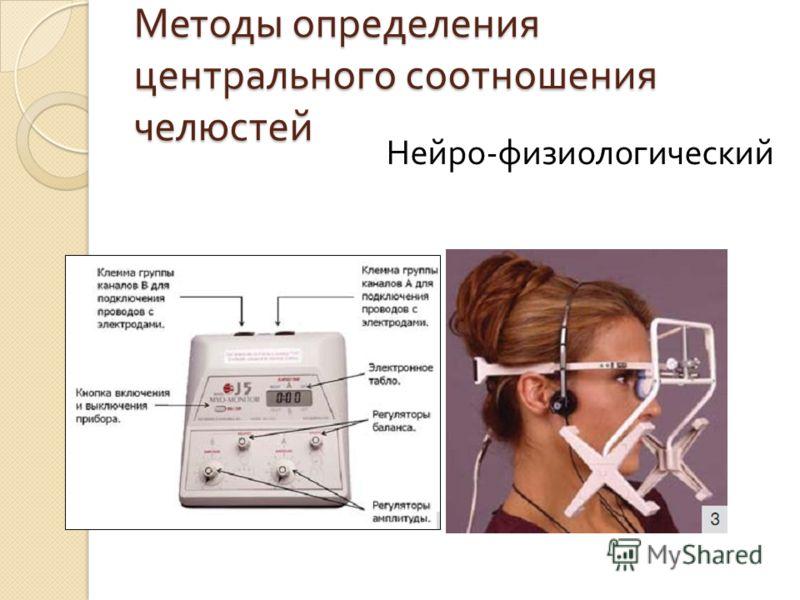 Методы определения центрального соотношения челюстей Нейро - физиологический