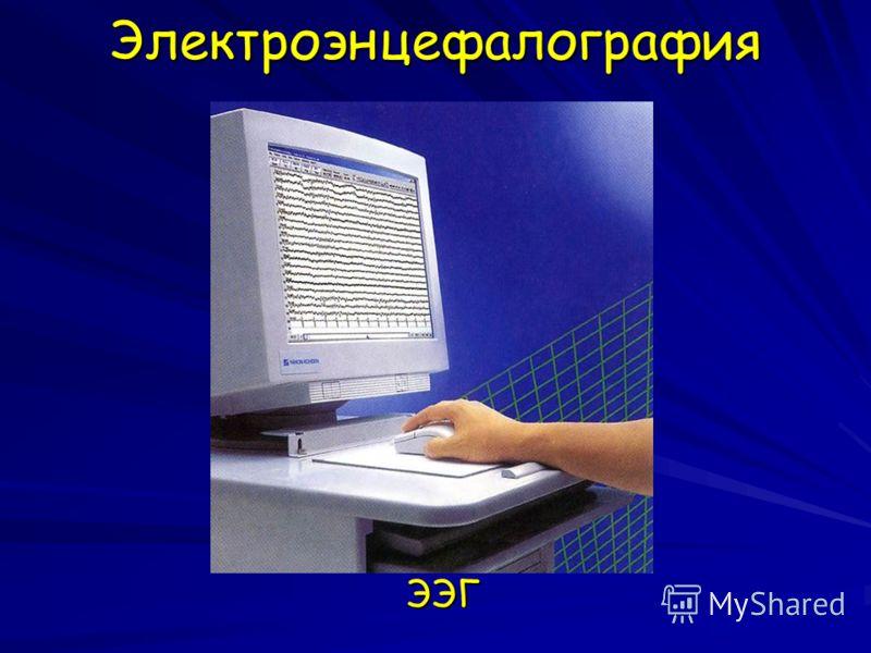ЭлектроэнцефалографияЭЭГ