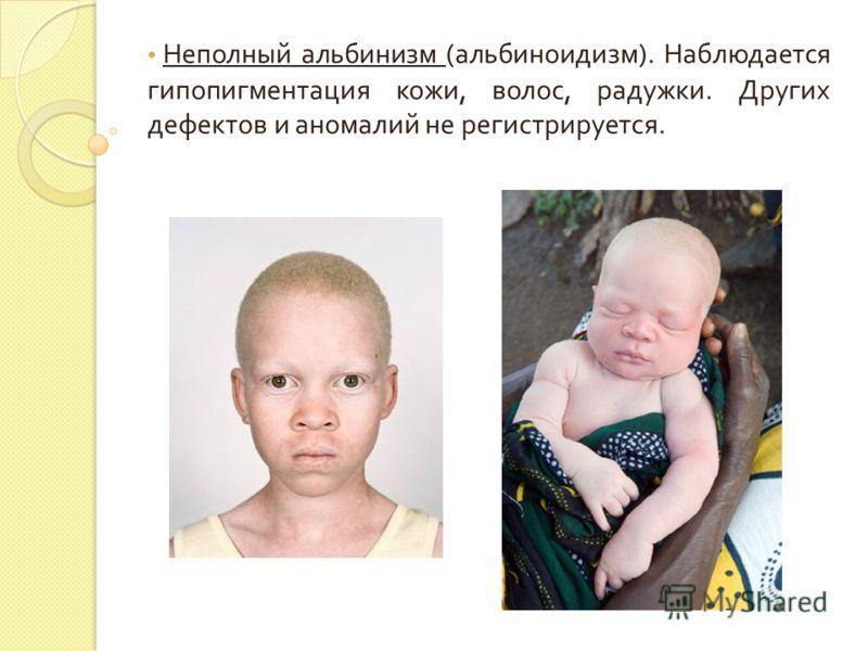 Неполный альбинизм ( альбиноидизм ). Наблюдается гипопигментация кожи, волос, радужки. Других дефектов и аномалий не регистрируется.