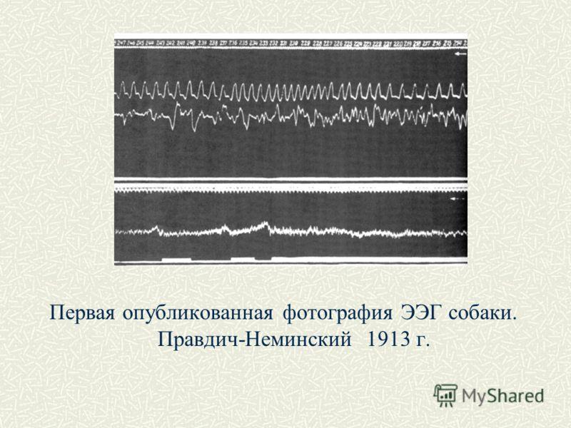 Первая опубликованная фотография ЭЭГ собаки. Правдич-Неминский 1913 г.