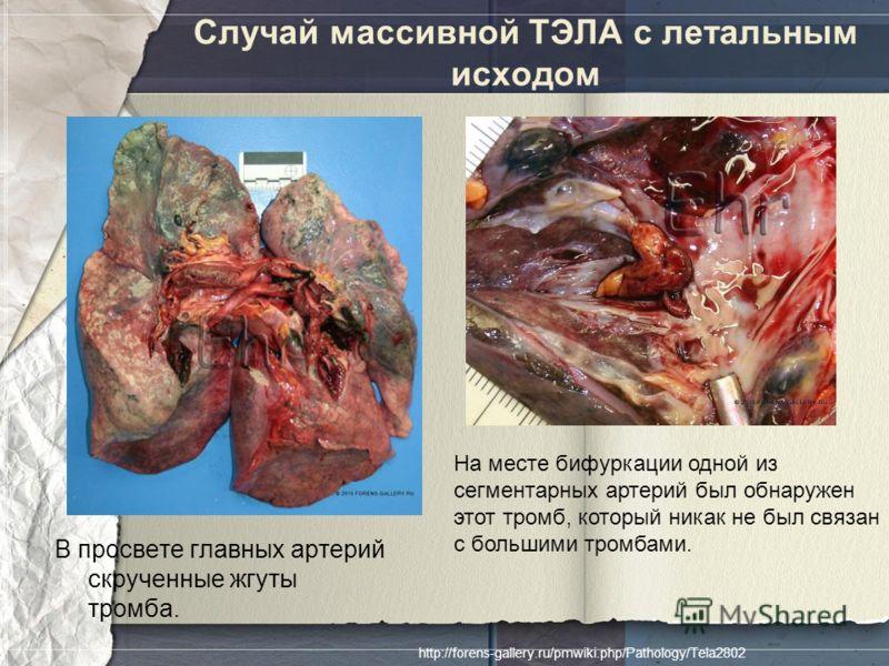 Случай массивной ТЭЛА с летальным исходом В просвете главных артерий скрученные жгуты тромба. На месте бифуркации одной из сегментарных артерий был обнаружен этот тромб, который никак не был связан с большими тромбами. http://forens-gallery.ru/pmwiki