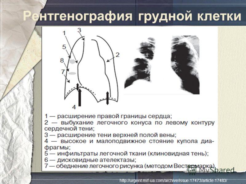 Рентгенография грудной клетки http://urgent.mif-ua.com/archive/issue-17473/article-17483/
