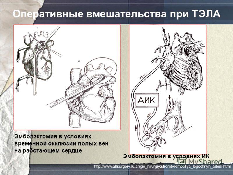 Оперативные вмешательства при ТЭЛА Эмболэктомия в условиях временной окклюзии полых вен на работающем сердце Эмболэктомия в условиях ИК http://www.allsurgery.ru/angio_hirurgiya/tromboemboliya_legochnyh_arterii.html