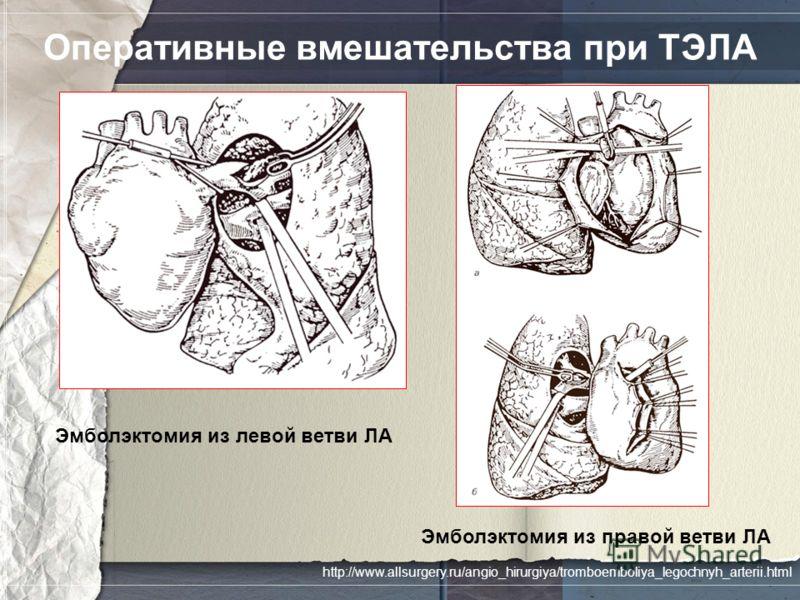 Оперативные вмешательства при ТЭЛА Эмболэктомия из левой ветви ЛА Эмболэктомия из правой ветви ЛА http://www.allsurgery.ru/angio_hirurgiya/tromboemboliya_legochnyh_arterii.html