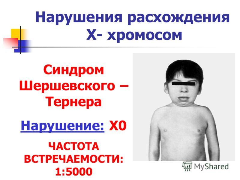Нарушения расхождения Х- хромосом Синдром Шершевского – Тернера Нарушение: Х0 ЧАСТОТА ВСТРЕЧАЕМОСТИ: 1:5000