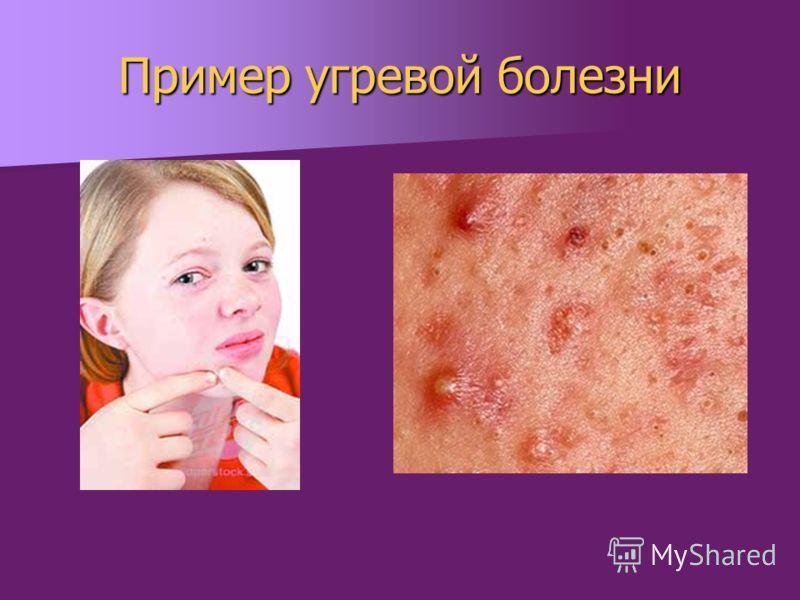Пример угревой болезни