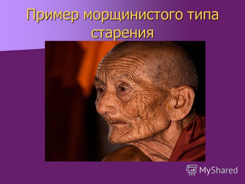 Пример морщинистого типа старения