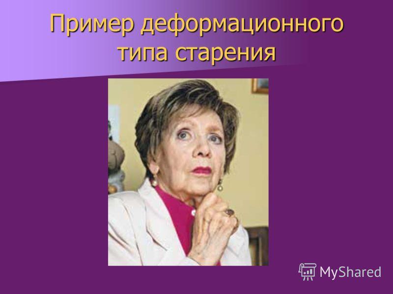 Пример деформационного типа старения