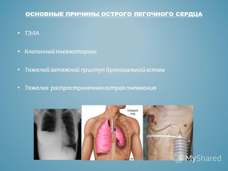 ОСНОВНЫЕ ПРИЧИНЫ ОСТРОГО ЛЕГОЧНОГО СЕРДЦА ТЭЛА Клапанный пневмоторакс Тяжелый затяжной приступ бронхиальной астмы Тяжелая распространенная острая пневмония