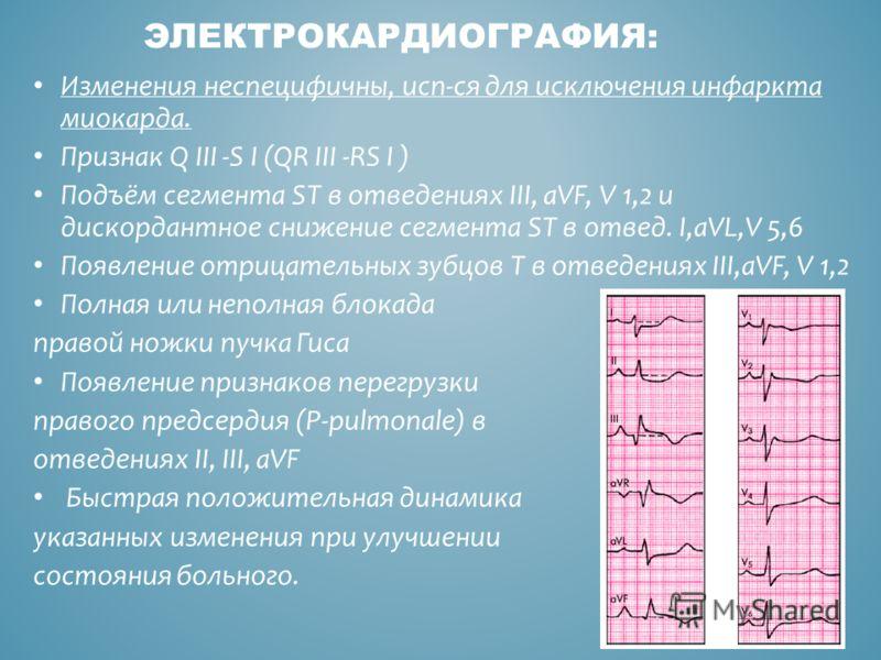 ЭЛЕКТРОКАРДИОГРАФИЯ: Изменения неспецифичны, исп-ся для исключения инфаркта миокарда. Признак Q III -S I (QR III -RS I ) Подъём сегмента ST в отведениях III, aVF, V 1,2 и дискордантное снижение сегмента ST в отвед. I,aVL,V 5,6 Появление отрицательных
