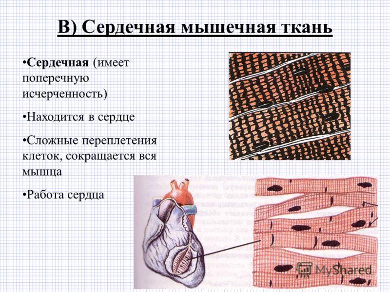 В) Сердечная мышечная ткань Сердечная (имеет поперечную исчерченность) Находится в сердце Сложные переплетения клеток, сокращается вся мышца Работа сердца