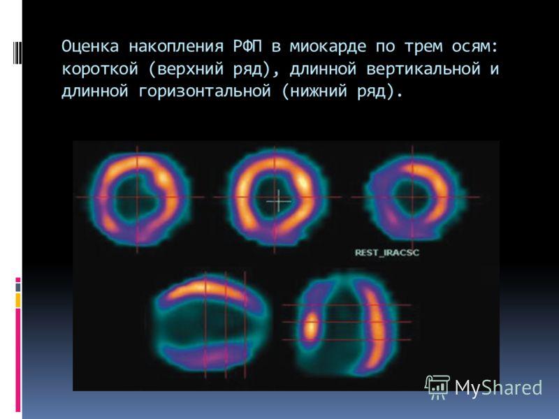 Оценка накопления РФП в миокарде по трем осям: короткой (верхний ряд), длинной вертикальной и длинной горизонтальной (нижний ряд).