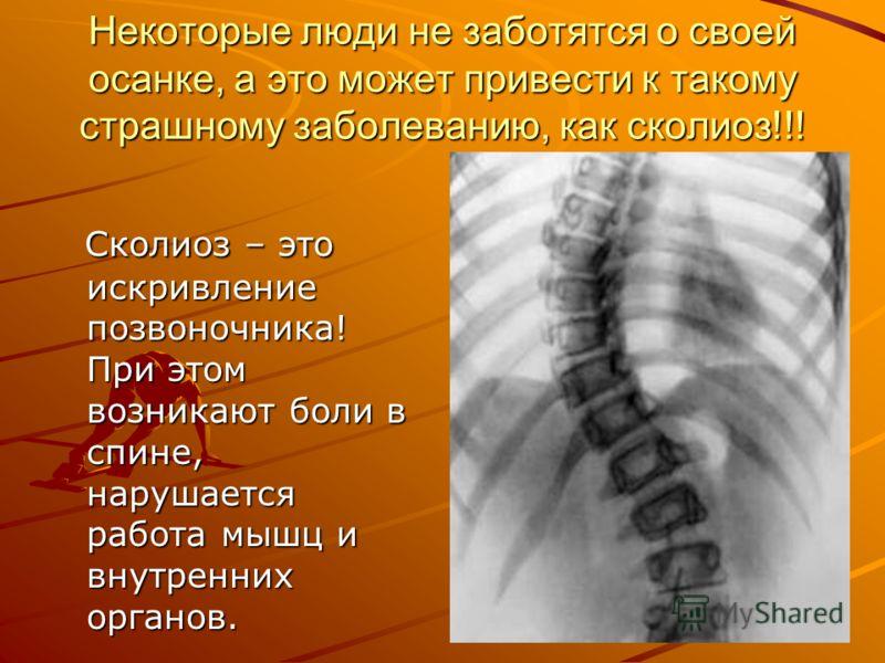 Некоторые люди не заботятся о своей осанке, а это может привести к такому страшному заболеванию, как сколиоз!!! Сколиоз – это искривление позвоночника! При этом возникают боли в спине, нарушается работа мышц и внутренних органов. Сколиоз – это искрив