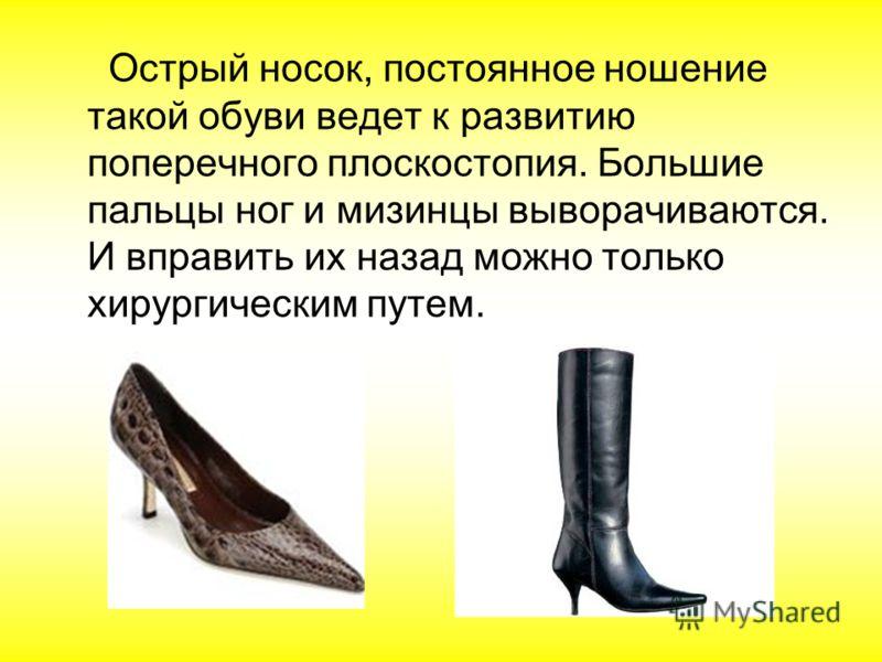 Острый носок, постоянное ношение такой обуви ведет к развитию поперечного плоскостопия. Большие пальцы ног и мизинцы выворачиваются. И вправить их назад можно только хирургическим путем.