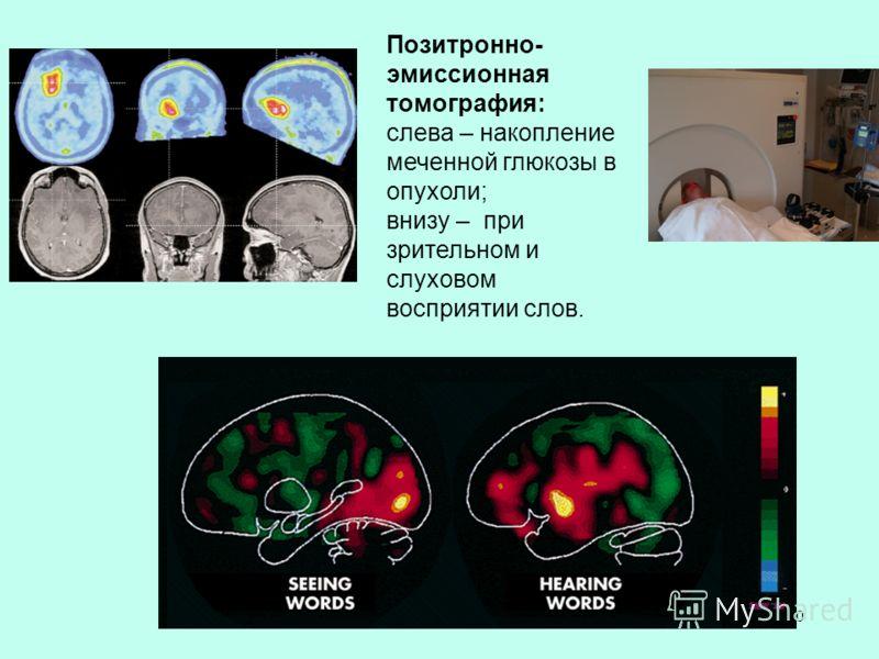 30 Позитронно- эмиссионная томография: слева – накопление меченной глюкозы в опухоли; внизу – при зрительном и слуховом восприятии слов.