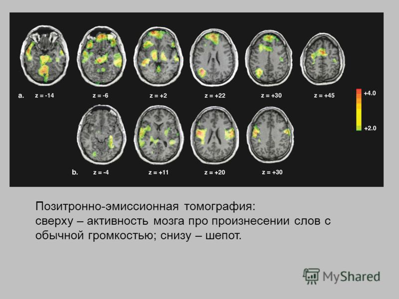 Позитронно-эмиссионная томография: сверху – активность мозга про произнесении слов с обычной громкостью; снизу – шепот.