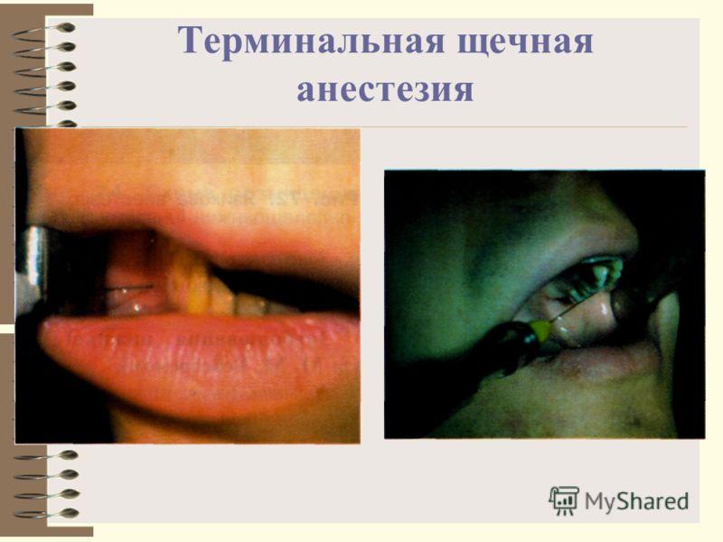 Терминальная щечная анестезия