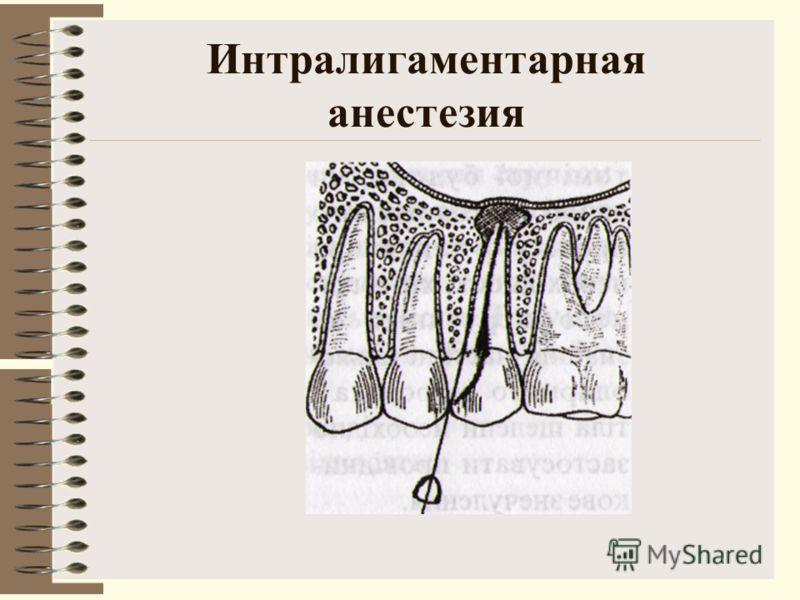 Интралигаментарная анестезия