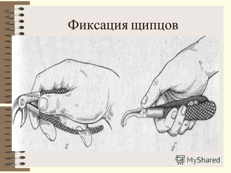 Фиксация щипцов
