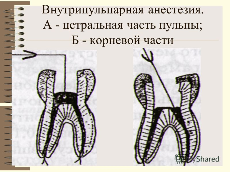 Внутрипульпарная анестезия. А - цетральная часть пульпы; Б - корневой части