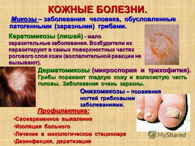 КОЖНЫЕ БОЛЕЗНИ. Микозы – заболевания человека, обусловленные патогенными (заразными) грибами. Микозы – заболевания человека, обусловленные патогенными (заразными) грибами. Кератомикозы (лишай) - мало заразительные заболевания. Возбудители их паразити