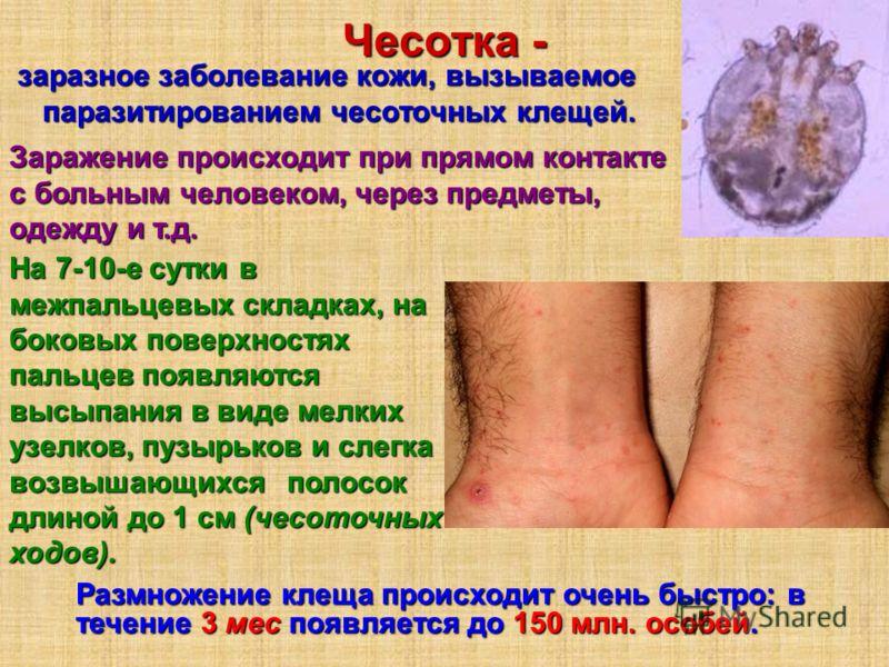 Чесотка - заразное заболевание кожи, вызываемое паразитированием чесоточных клещей. заразное заболевание кожи, вызываемое паразитированием чесоточных клещей. Размножение клеща происходит очень быстро: в течение 3 мес появляется до 150 млн. особей. За
