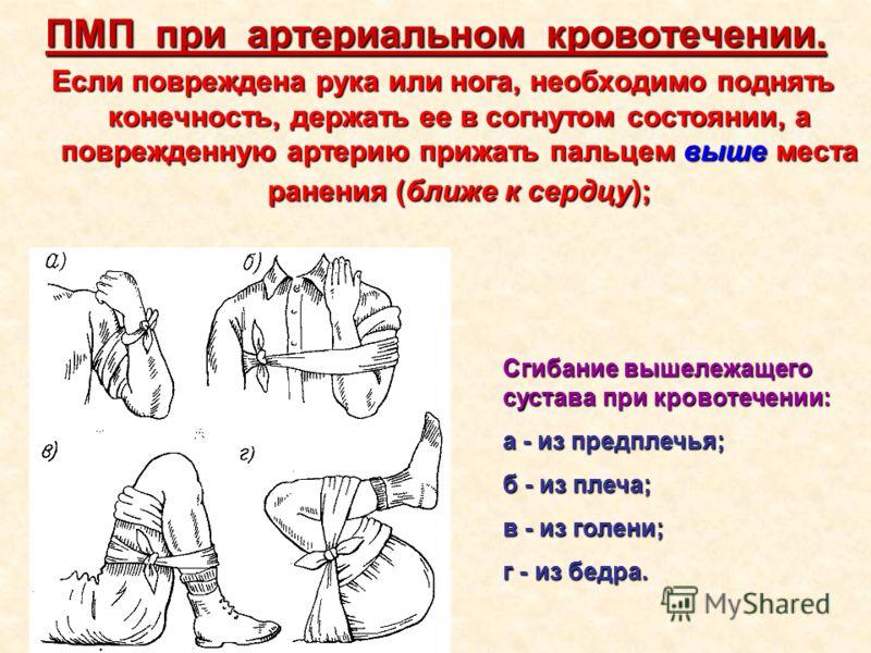ПМП при артериальном кровотечении. Если повреждена рука или нога, необходимо поднять конечность, держать ее в согнутом состоянии, а поврежденную артерию прижать пальцем выше места ранения (ближе к сердцу); Сгибание вышележащего сустава при кровотечен