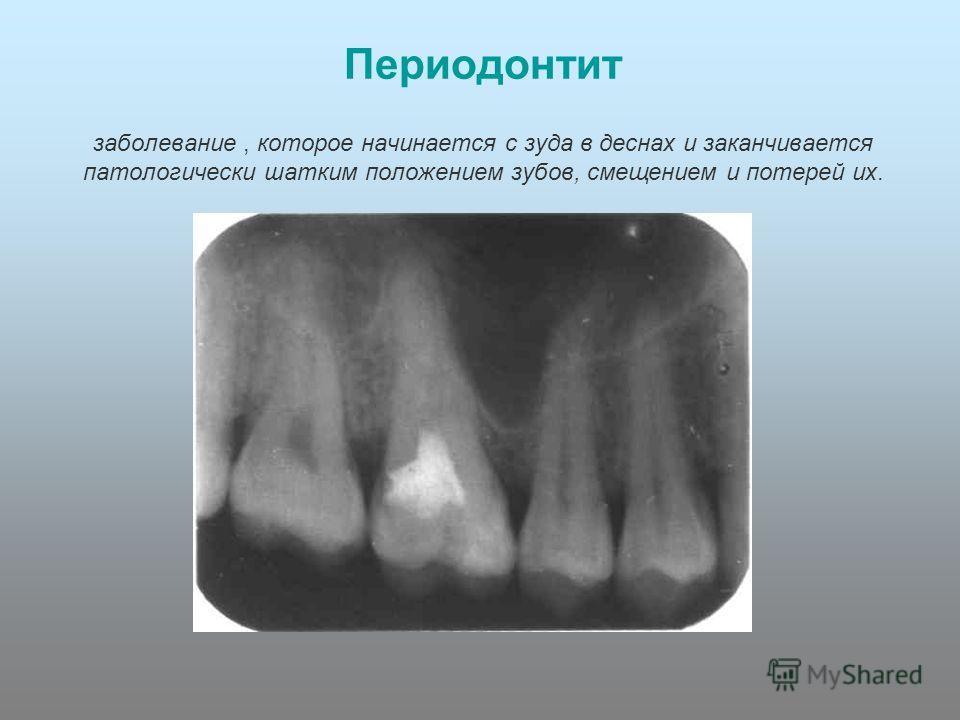 Периодонтит заболевание, которое начинается с зуда в деснах и заканчивается патологически шатким положением зубов, смещением и потерей их.