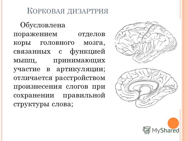 К ОРКОВАЯ ДИЗАРТРИЯ Обусловлена поражением отделов коры головного мозга, связанных с функцией мышц, принимающих участие в артикуляции; отличается расстройством произнесения слогов при сохранении правильной структуры слова;