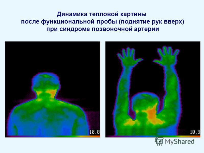 Динамика тепловой картины после функциональной пробы (поднятие рук вверх) при синдроме позвоночной артерии