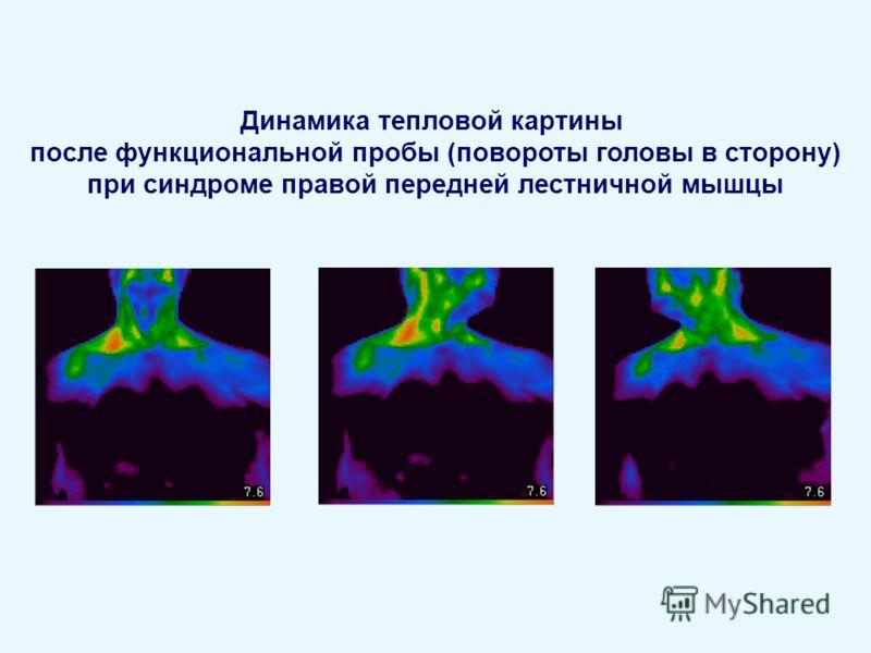 Динамика тепловой картины после функциональной пробы (повороты головы в сторону) при синдроме правой передней лестничной мышцы