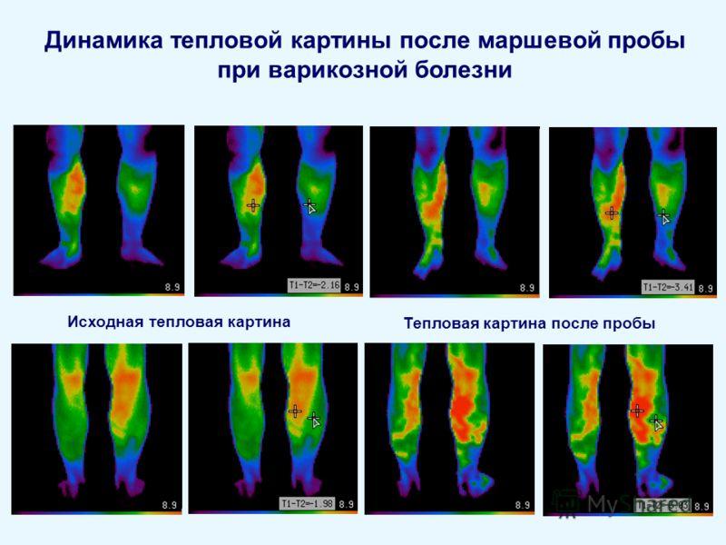Динамика тепловой картины после маршевой пробы при варикозной болезни Исходная тепловая картина Тепловая картина после пробы