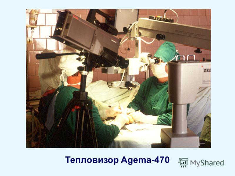 Тепловизор Agema-470