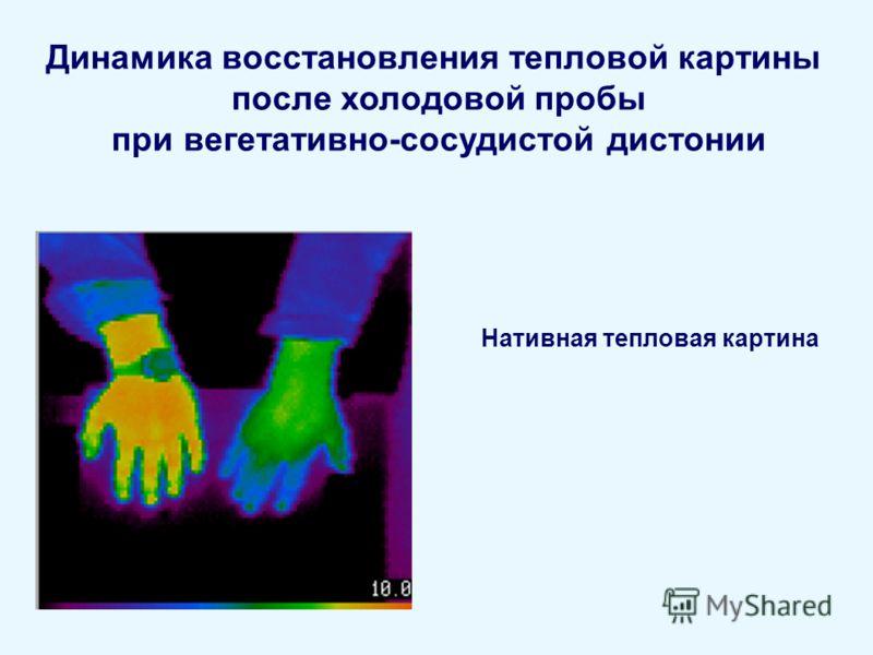 Динамика восстановления тепловой картины после холодовой пробы при вегетативно-сосудистой дистонии Нативная тепловая картина
