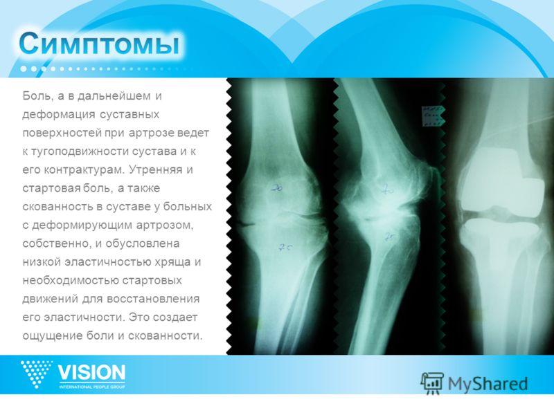 Боль, а в дальнейшем и деформация суставных поверхностей при артрозе ведет к тугоподвижности сустава и к его контрактурам. Утренняя и стартовая боль, а также скованность в суставе у больных с деформирующим артрозом, собственно, и обусловлена низкой э