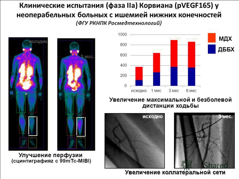 Клинические испытания (фаза IIa) Корвиана (pVEGF165) у неоперабельных больных с ишемией нижних конечностей (ФГУ РКНПК Росмедтехнологий) Увеличение коллатеральной сети Увеличение максимальной и безболевой дистанции ходьбы (М) исходно 3 мес. Улучшение