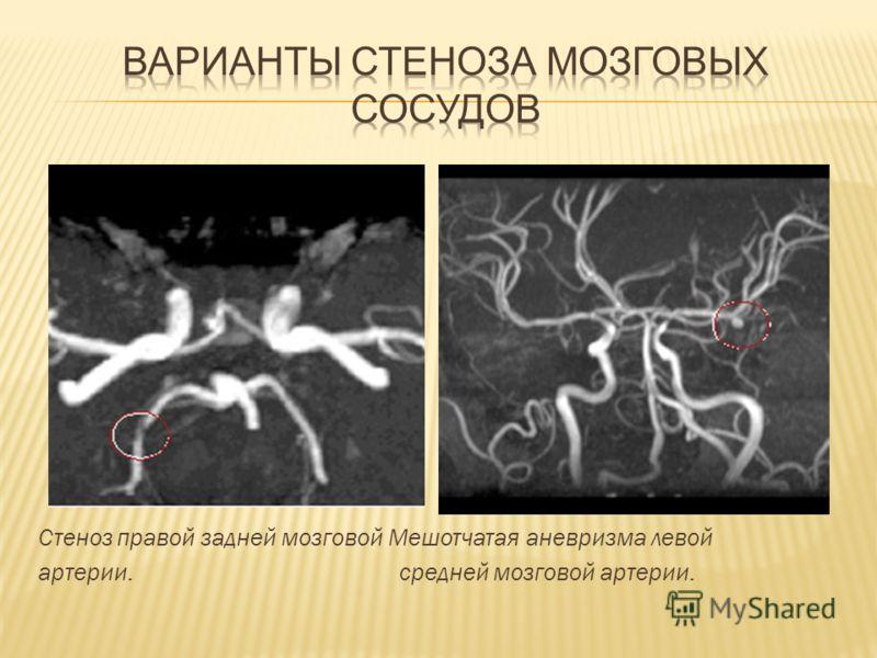 Стеноз правой задней мозговой Мешотчатая аневризма левой артерии. средней мозговой артерии.