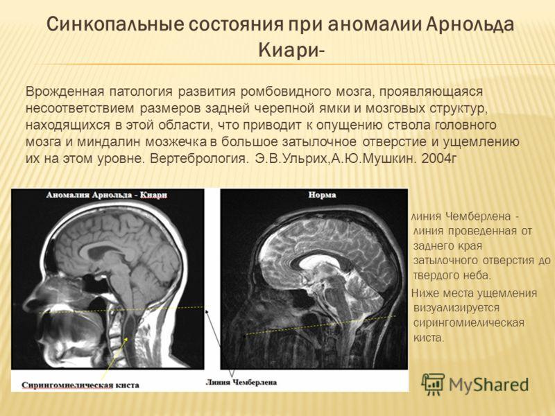 Синдром Арнольда-Киари фото