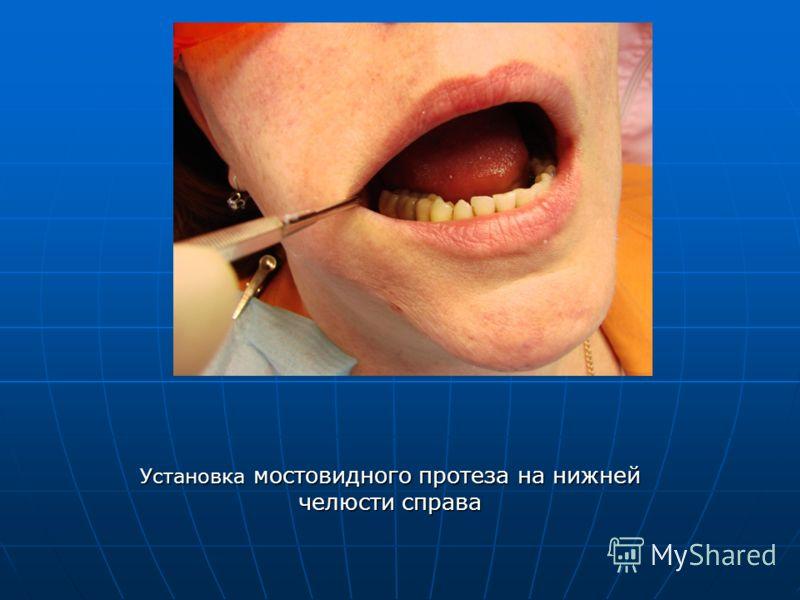 Установка мостовидного протеза на нижней челюсти справа