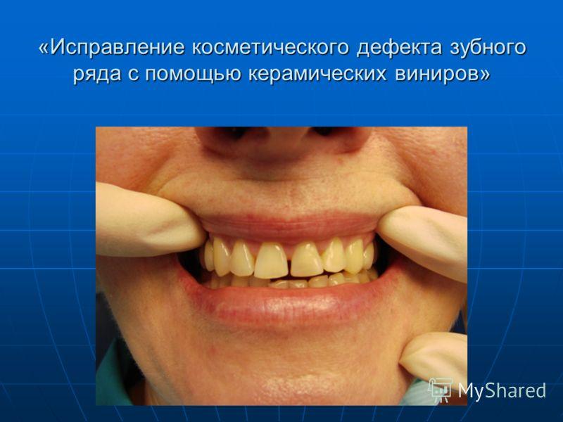 «Исправление косметического дефекта зубного ряда с помощью керамических виниров»