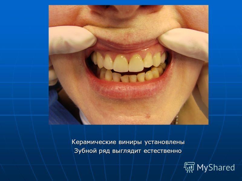 Керамические виниры установлены Зубной ряд выглядит естественно