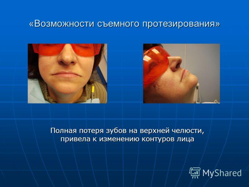 «Возможности съемного протезирования» Полная потеря зубов на верхней челюсти, привела к изменению контуров лица