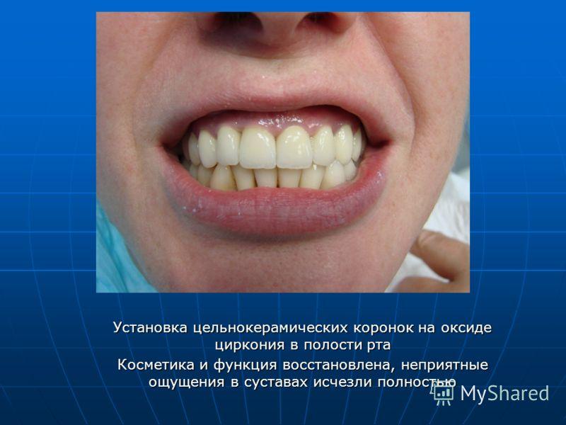 Установка цельнокерамических коронок на оксиде циркония в полости рта Косметика и функция восстановлена, неприятные ощущения в суставах исчезли полностью