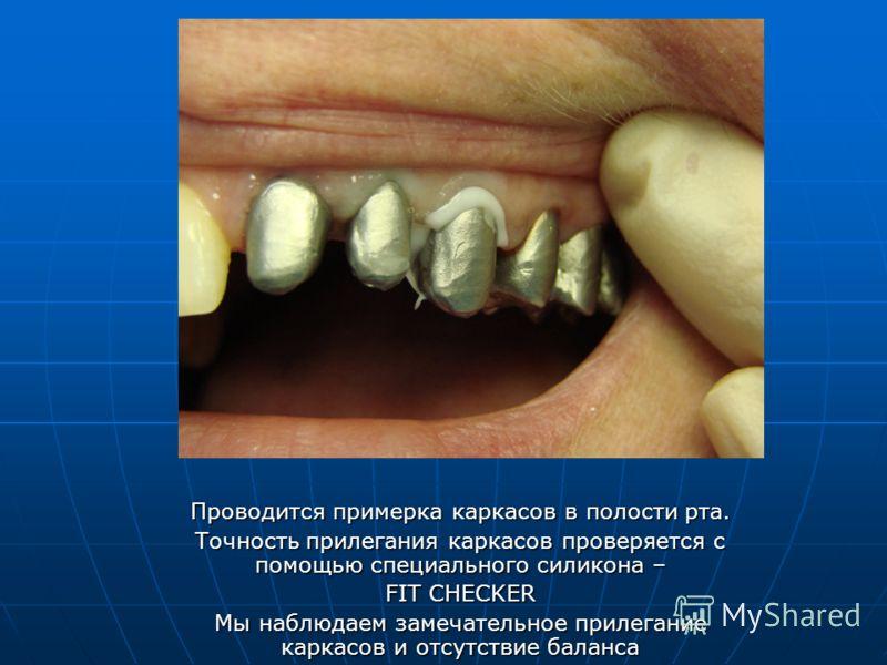 Проводится примерка каркасов в полости рта. Точность прилегания каркасов проверяется с помощью специального силикона – FIT CHECKER Мы наблюдаем замечательное прилегание каркасов и отсутствие баланса